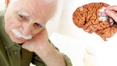 These Three Lifestyle Changes Can Help Guard Against Dementia