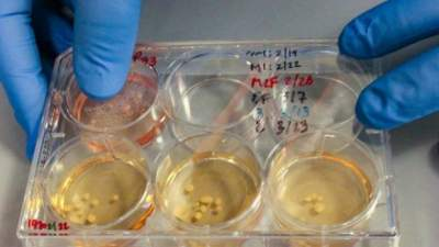 Analog scientists of the human brain have been created